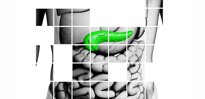 insuficiencia pancreática diabetes y mala absorción de alimentos