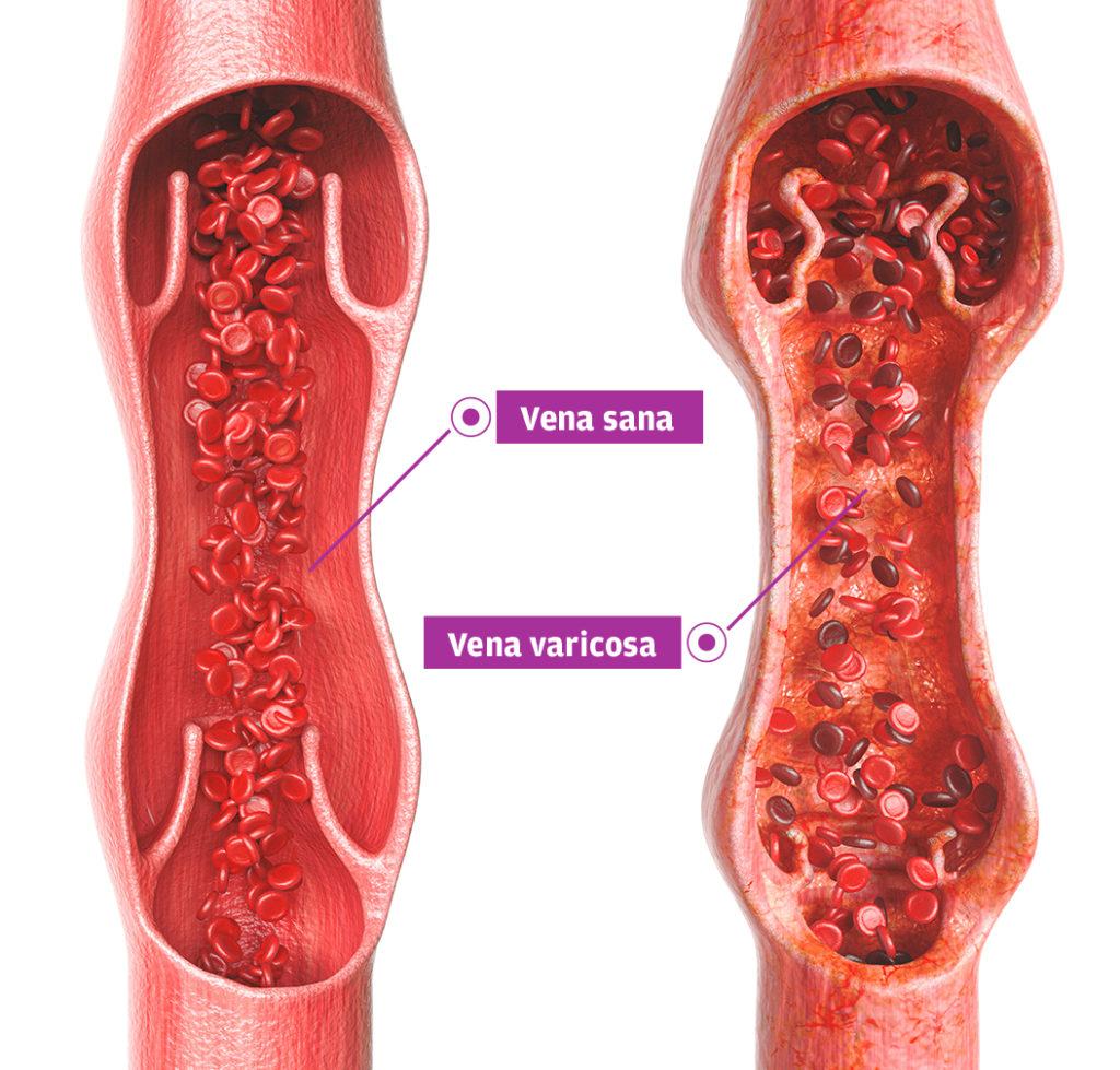 varicoză din care ajută tratamentul daricose darsonvalem